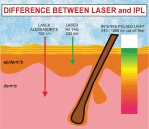 IPL vs Laser Hair Removal | Body Cafe blog & Online Shop